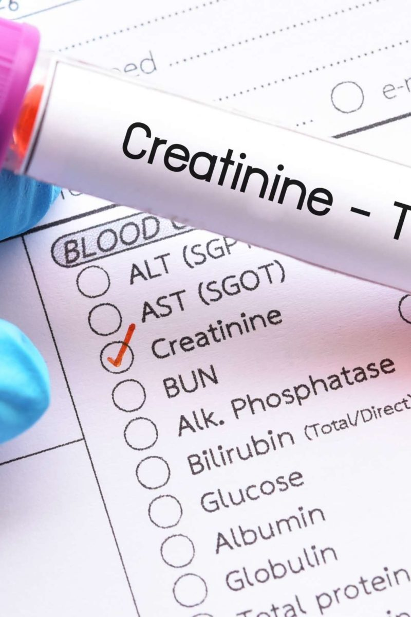 Creatinine Blood Test Purpose Procedure And Low Or High Ranges