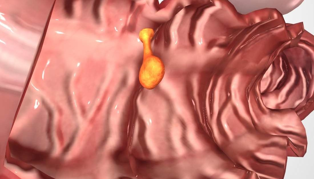 Colon Polyps Causes Symptoms And Treatment