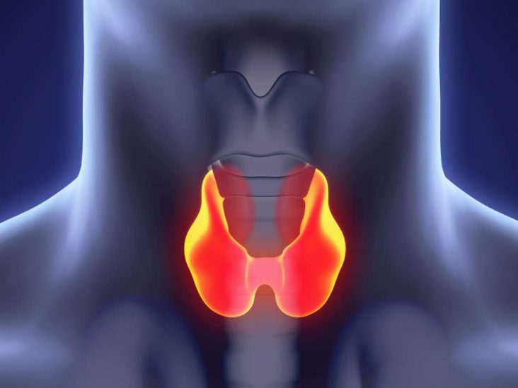 Hypoechoic Thyroid Nodule What Does It Mean And Risk Of Cancer