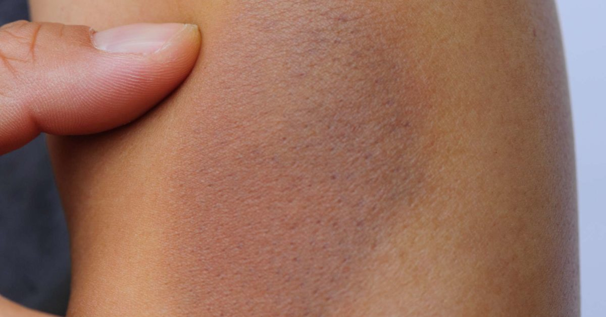 Reason no yellow for bruising What Causes