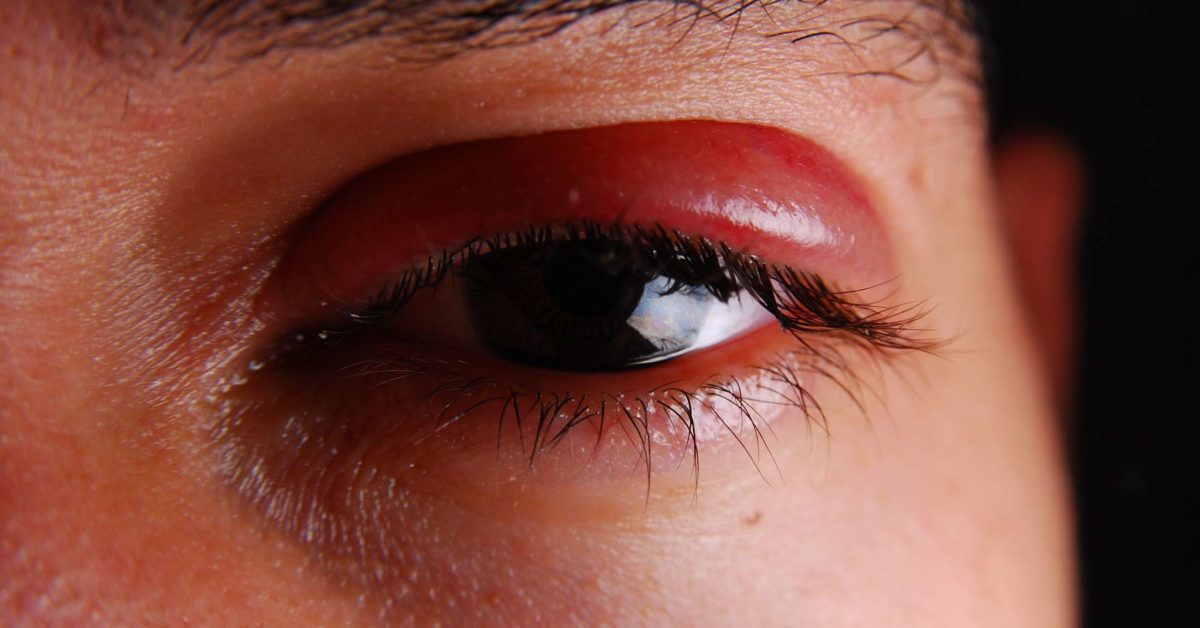 Shingles in the eye: Symptoms, treatment, and prevention