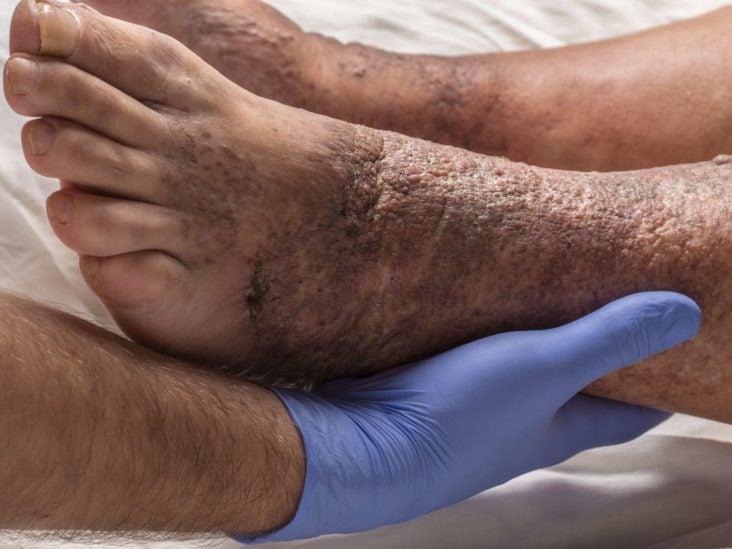 eczema estasis