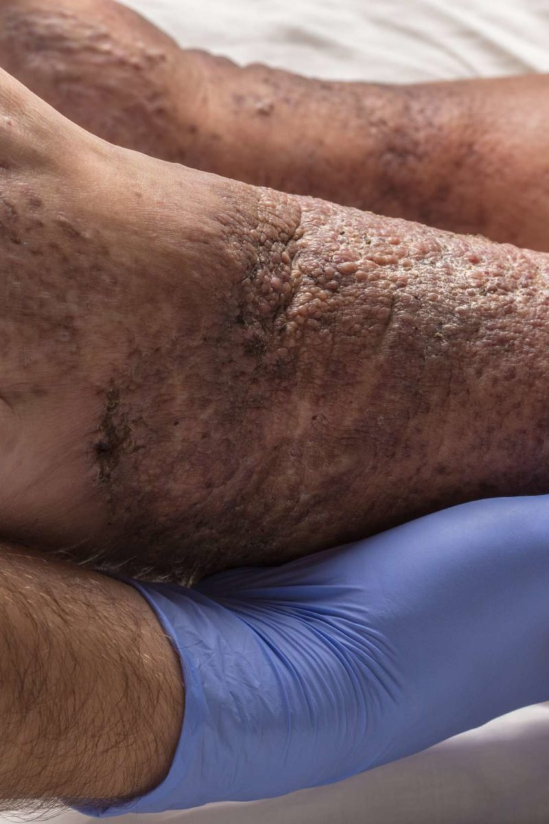 Stasis Dermatitis And Ulcers Causes Symptoms And Treatment