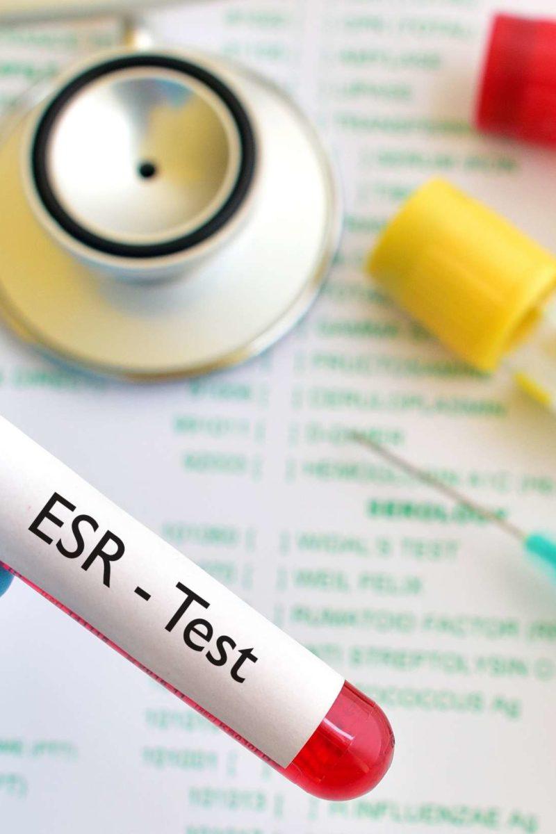 what is a esr blood test