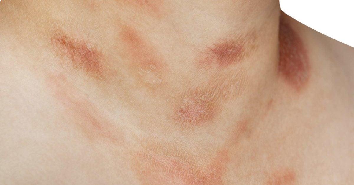 Psoriasis skin disease treatment in urdu. psoriasis kezelésére Sundbyberg