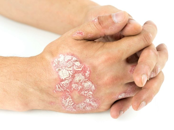 best psoriasis treatment for hands