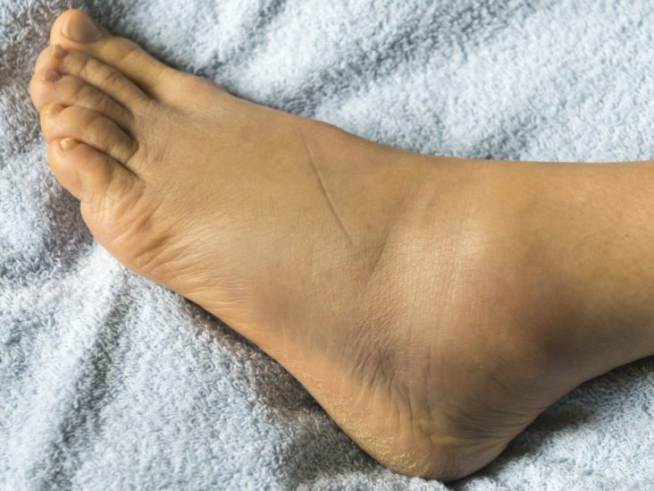Swollen feet during pregnancy: Causes and treatment