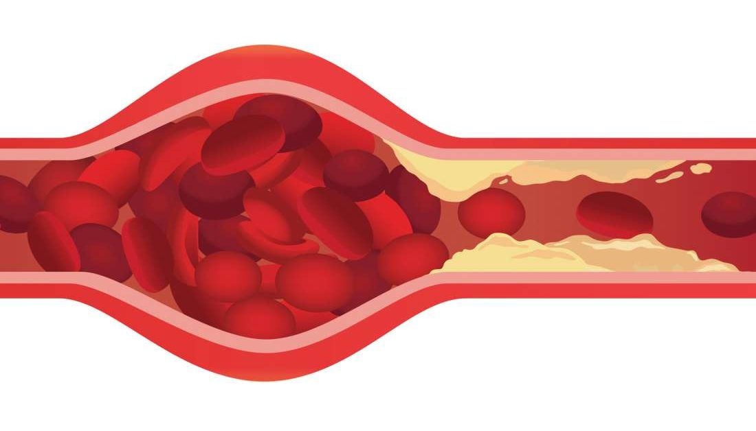 Could it be possible to eliminate clogged arteries?