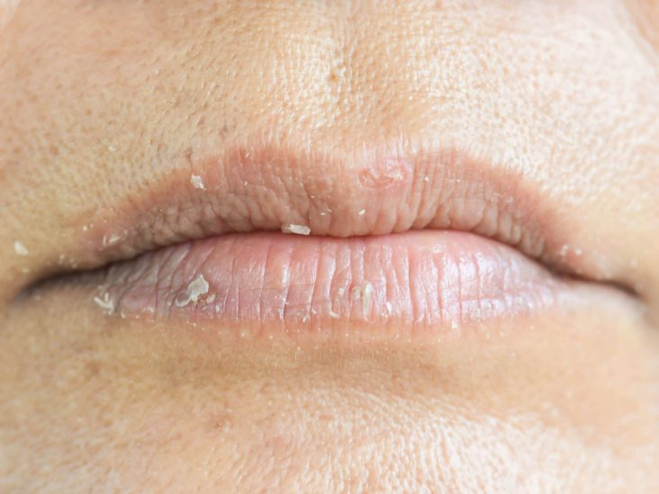 Lip Cancer What It Looks Like And What To Do