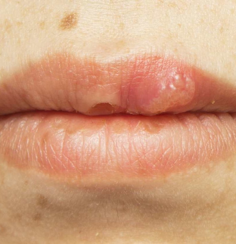 Hpv mouth how to treat Papiloma pleoapelor