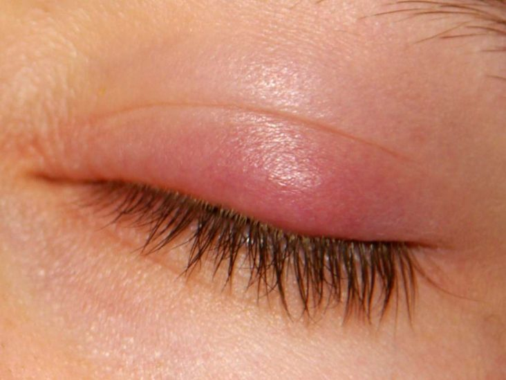How To Get Rid Of A Stye On My Eyelid