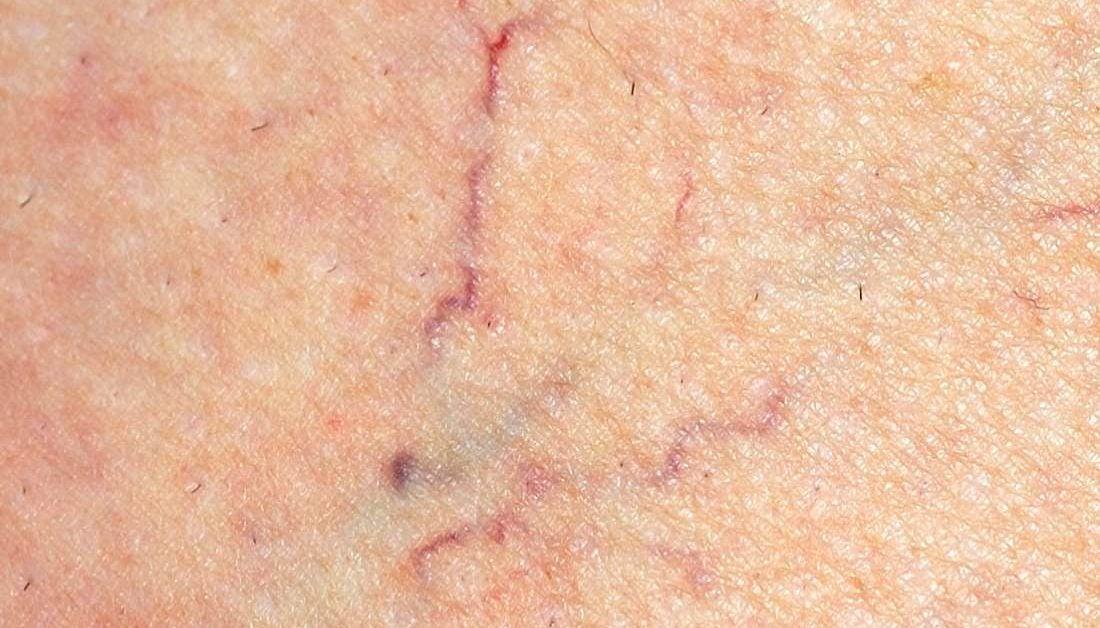 Image result for spider veins