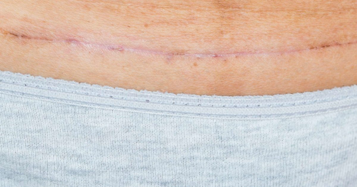 cellulitis and abdominal pain