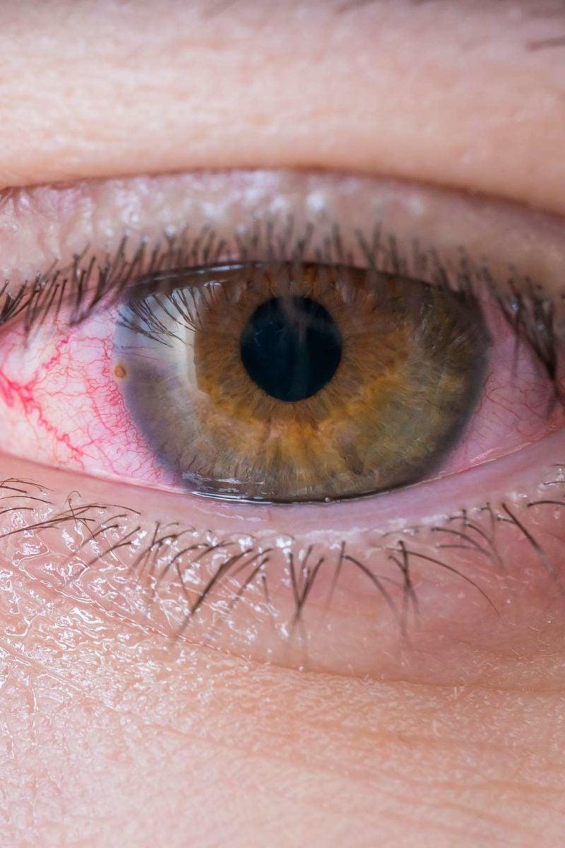 5 Home Remedies For Pinkeye
