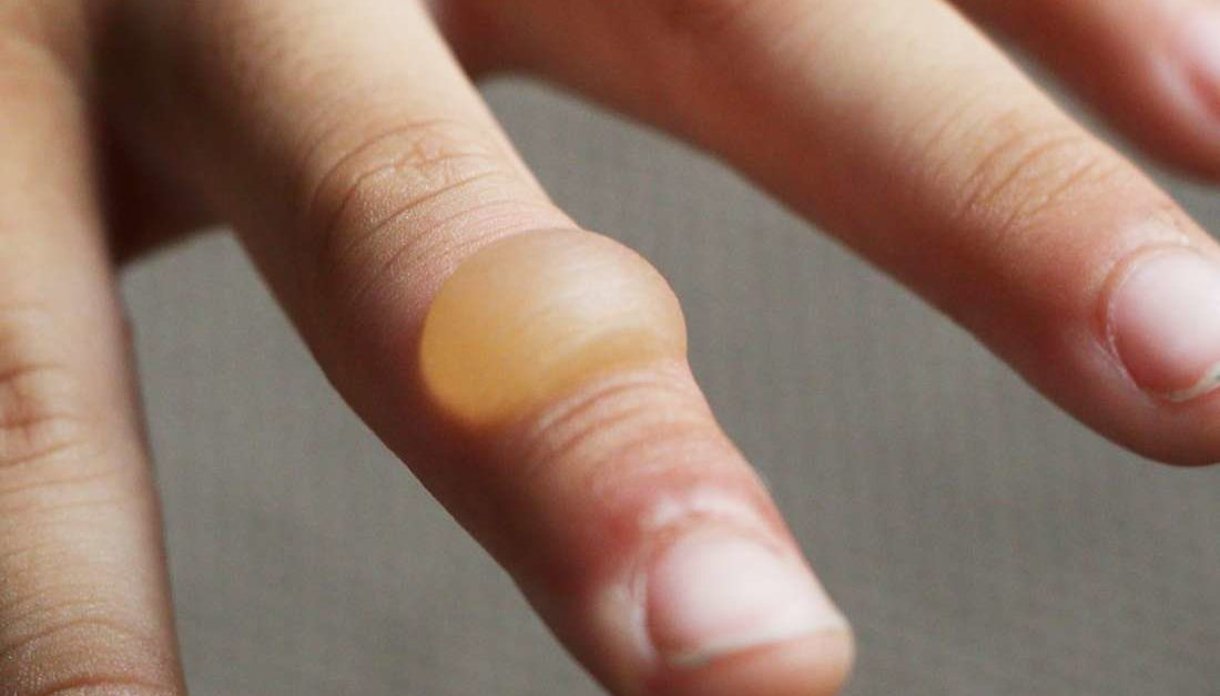 Burn blister: First aid, treatment, and types of burns