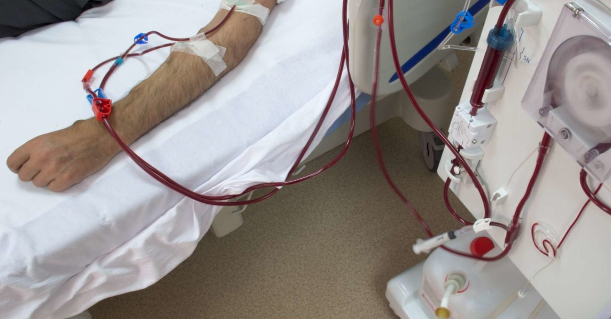 Acute Renal Failure Symptoms And Causes