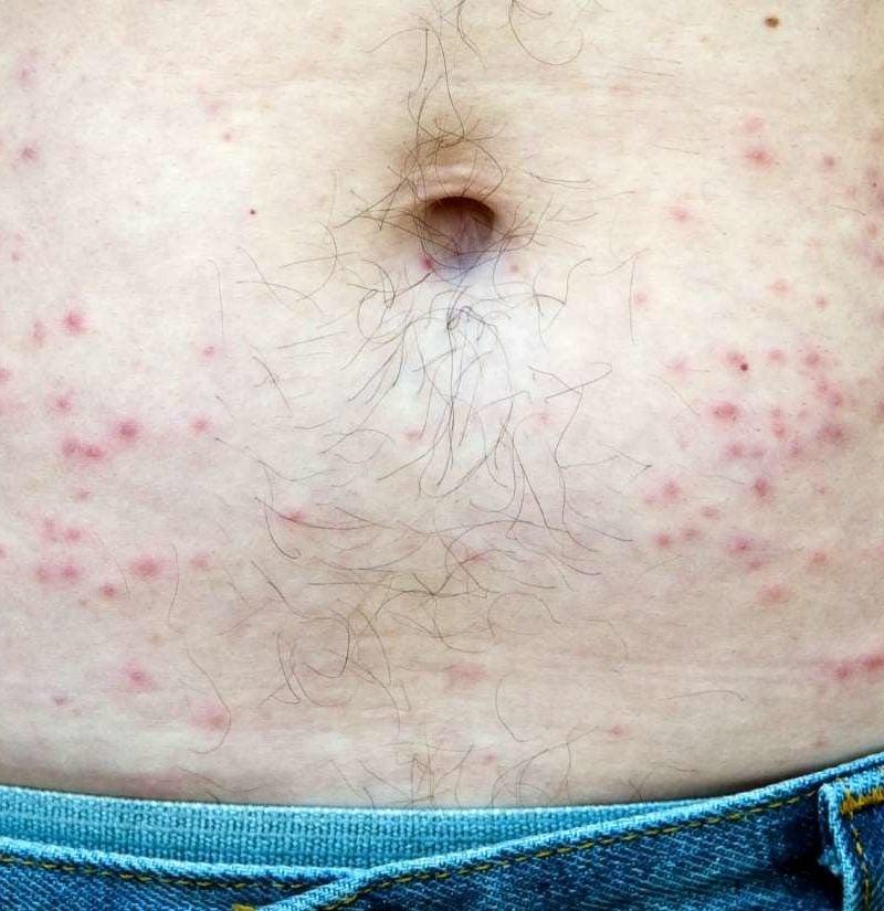 Hot tub folliculitis: Pictures, symptoms, diagnosis, treatment