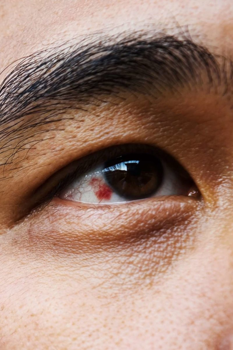 Red Spot On Eye Causes And Treatment