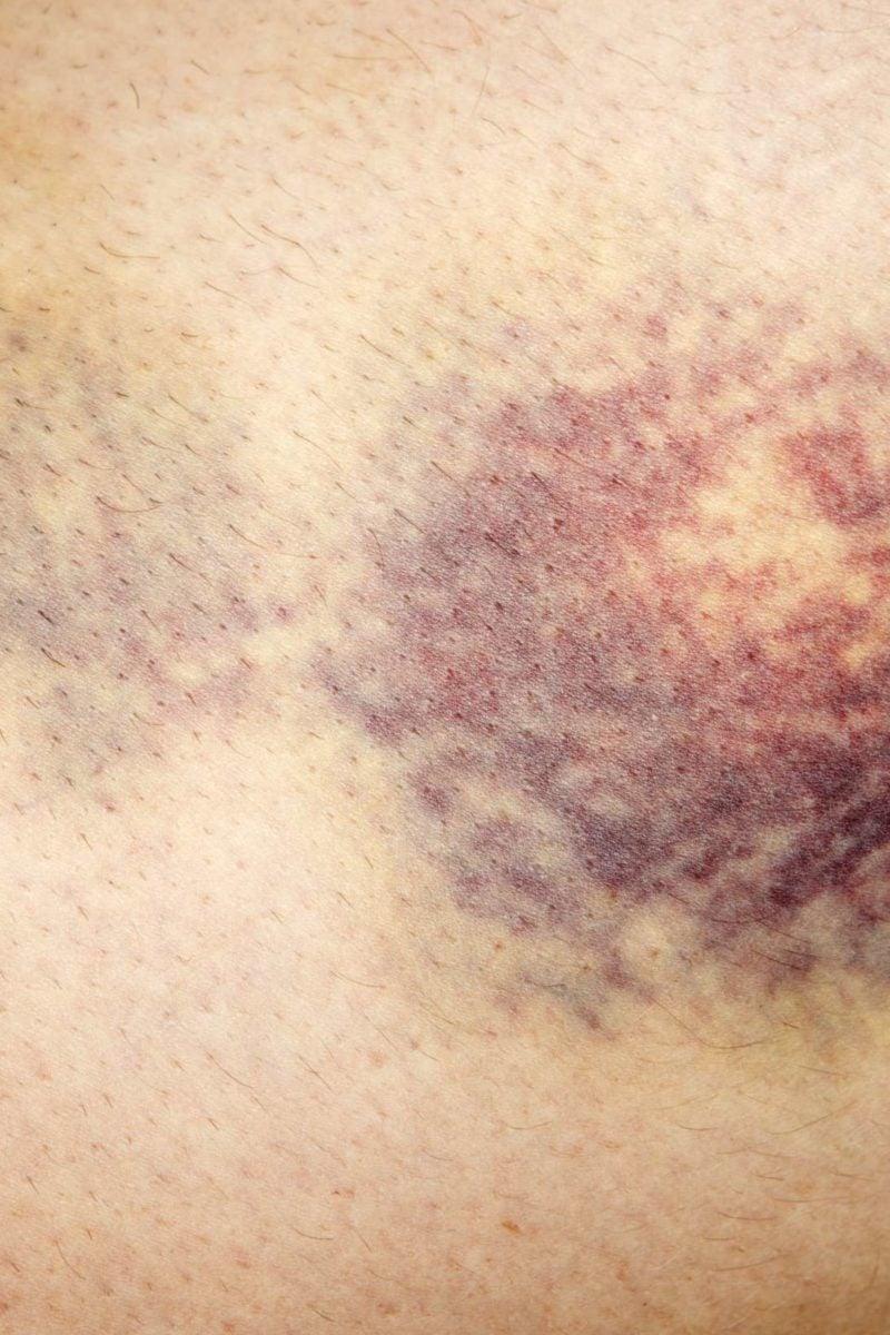 bruise varicose)