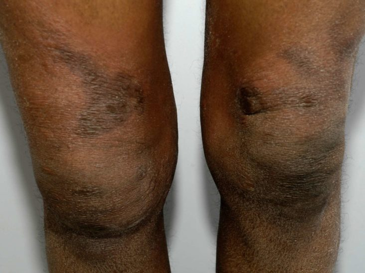 Can Black People Get Skin Cancer