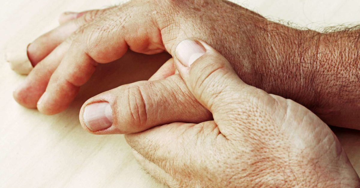Can you die from rheumatoid arthritis? Lifespan and outlook