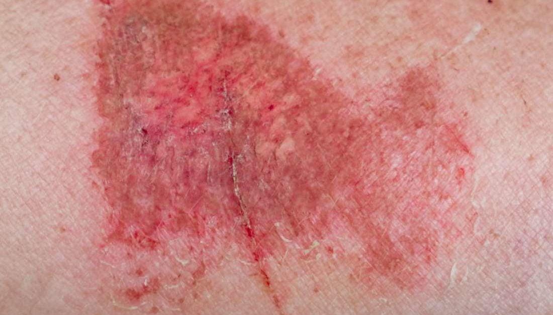 Friction Burn On Symptoms