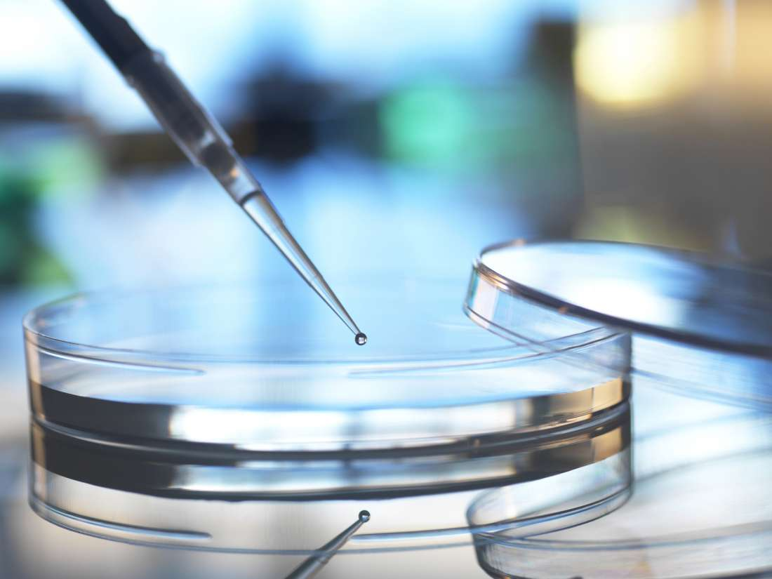 Stem Cell Therapy For Rheumatoid Arthritis What To Know