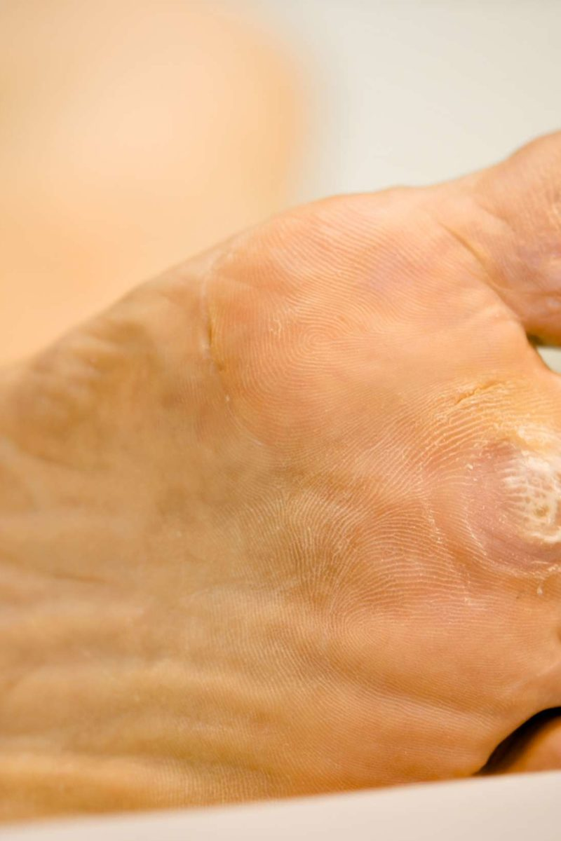Wart virus how long does it live