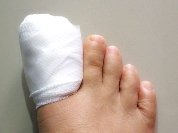 Ingrown after surgery toe toenail numb still How Your