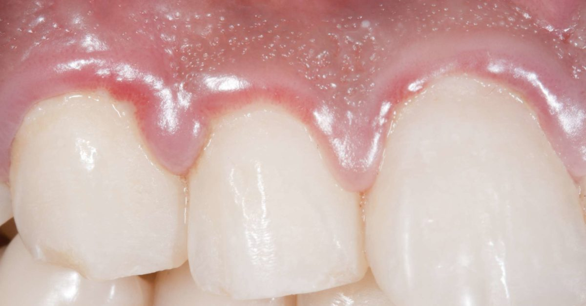 Swollen gums: Causes, treatments, and home remedies