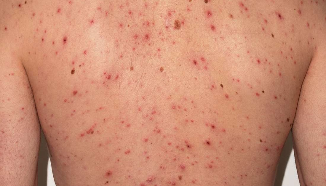 Chickenpox in adults: Symptoms, treatments, and vaccinationSevere Adult Chicken Pox