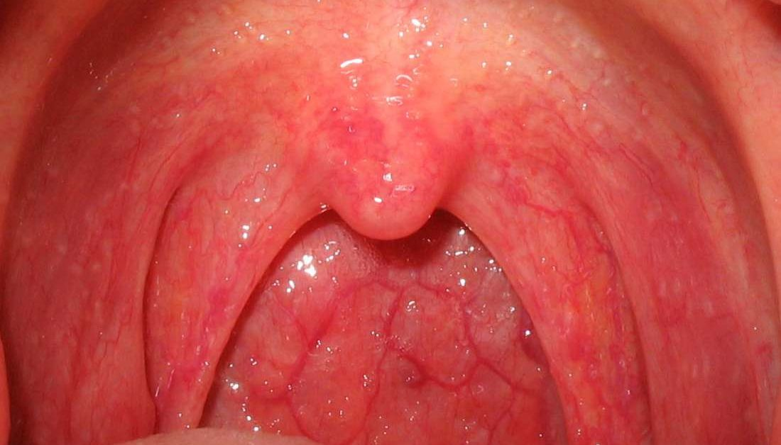 how can chlamydia affect your throat