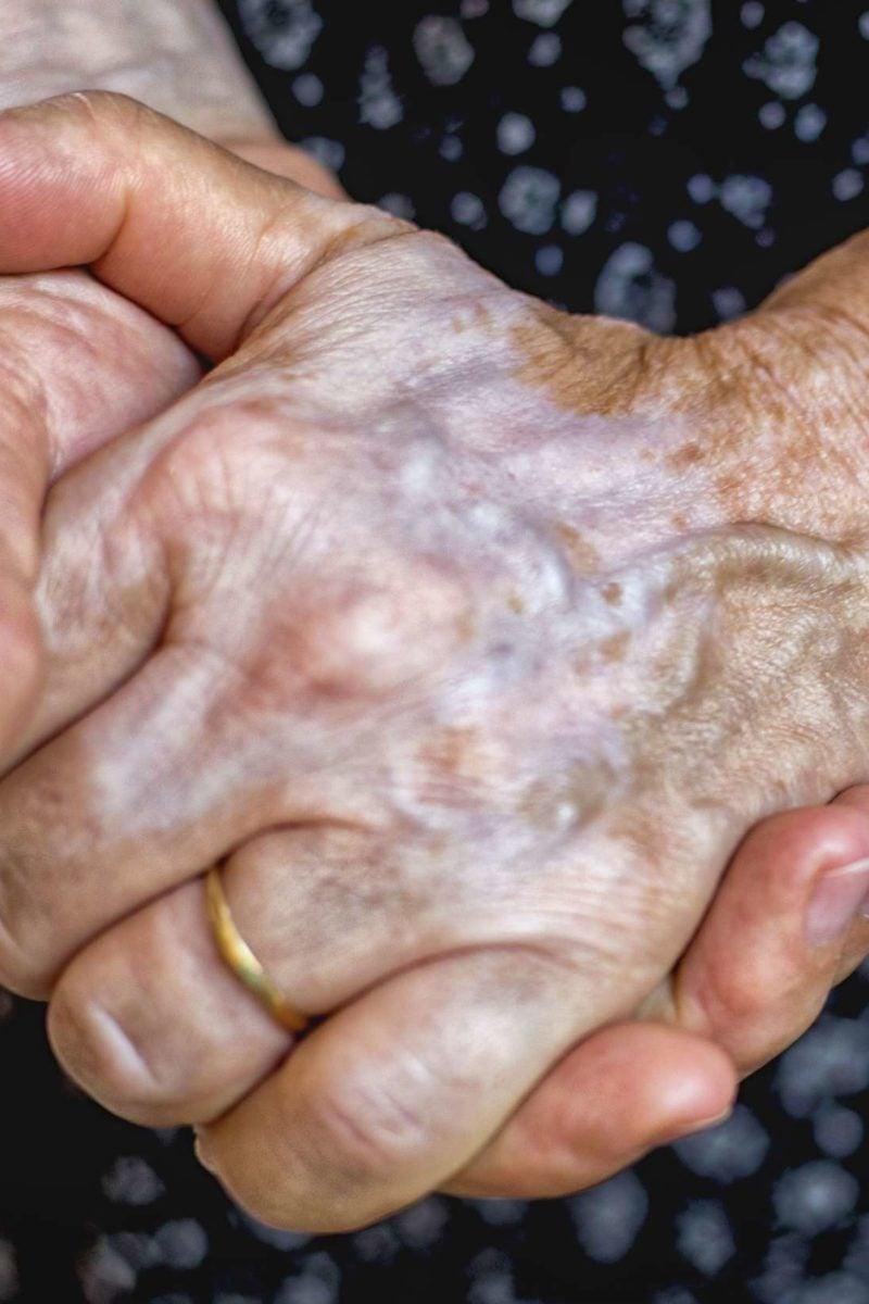 varicosea hand)