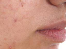 Using steroid cream on face for acne steroid super board