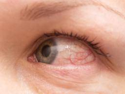 Allergic conjunctivitis: Treatment, symptoms, and causes