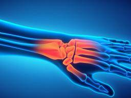 Wrist pain: Causes, symptoms, and treatment