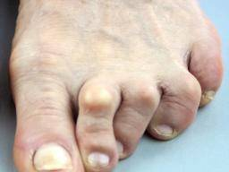 Arthritis In Toes Procedures And Pain Relief