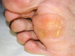 Blisters Causes Treatments And Prevention