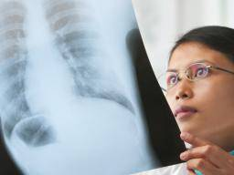 Mesothelioma Shows Promising Response To Existing Immunotherapy Drug