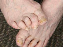 Hammer Toe Causes Symptoms And Treatment