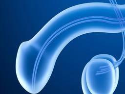 congestive prostatitis penile discharge