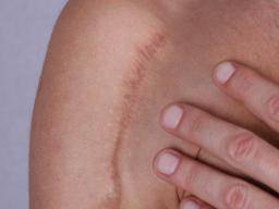 Getting Rid Of Old Scars Types Of Scar Home Remedies And Prevention