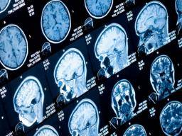 Adhd Large Imaging Study Confirms Differences In Several Brain Regions