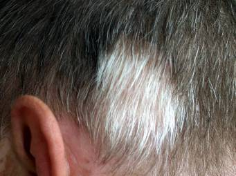 Poliosis Causes Symptoms And Treatment