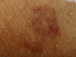 Age bruises old Stages of