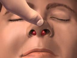 Septal Hematoma Symptoms Treatments And Causes