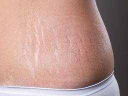 How To Reduce Stretch Markss On Dark Skin