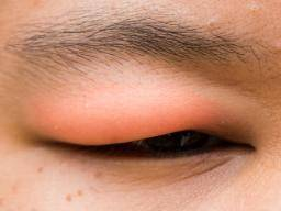 12 causes and treatments of a swollen eyelid: Stye, chalazion, allergies