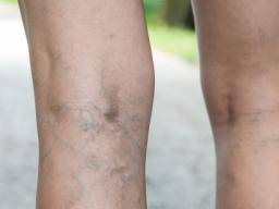 what causes green veins