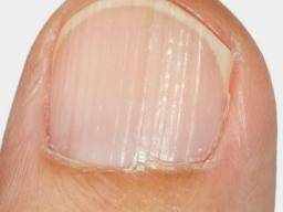 Causes thumbnails in what dents What causes